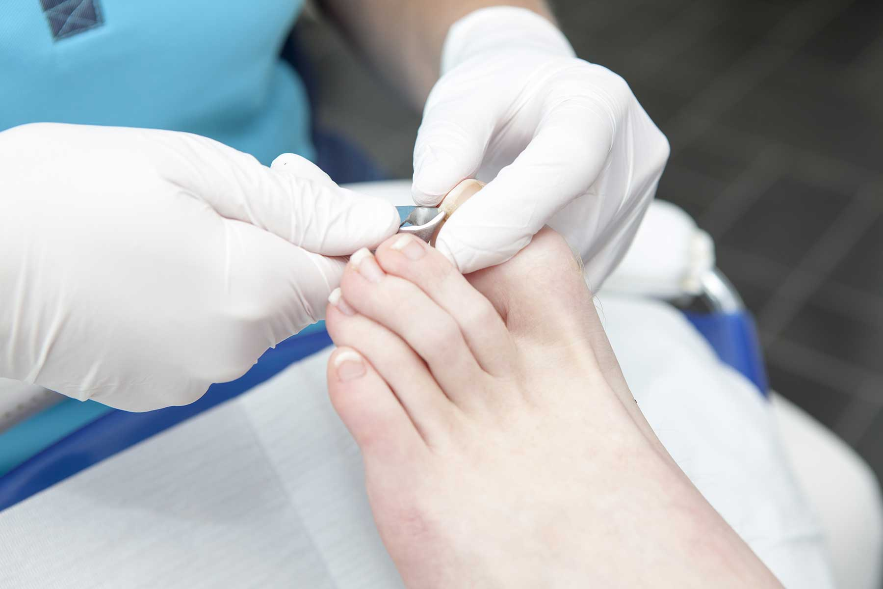 Ingrowing toenail treatment Farnham Surrey