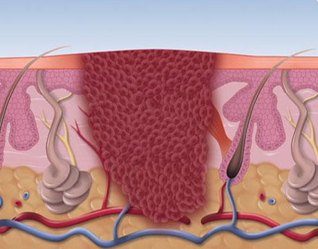 diagram of how Swift verruca treatment works