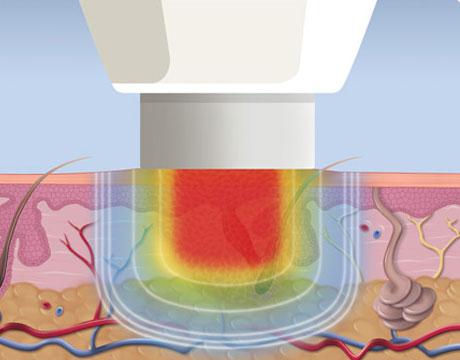 diagram of how Microwave verruca treatment works