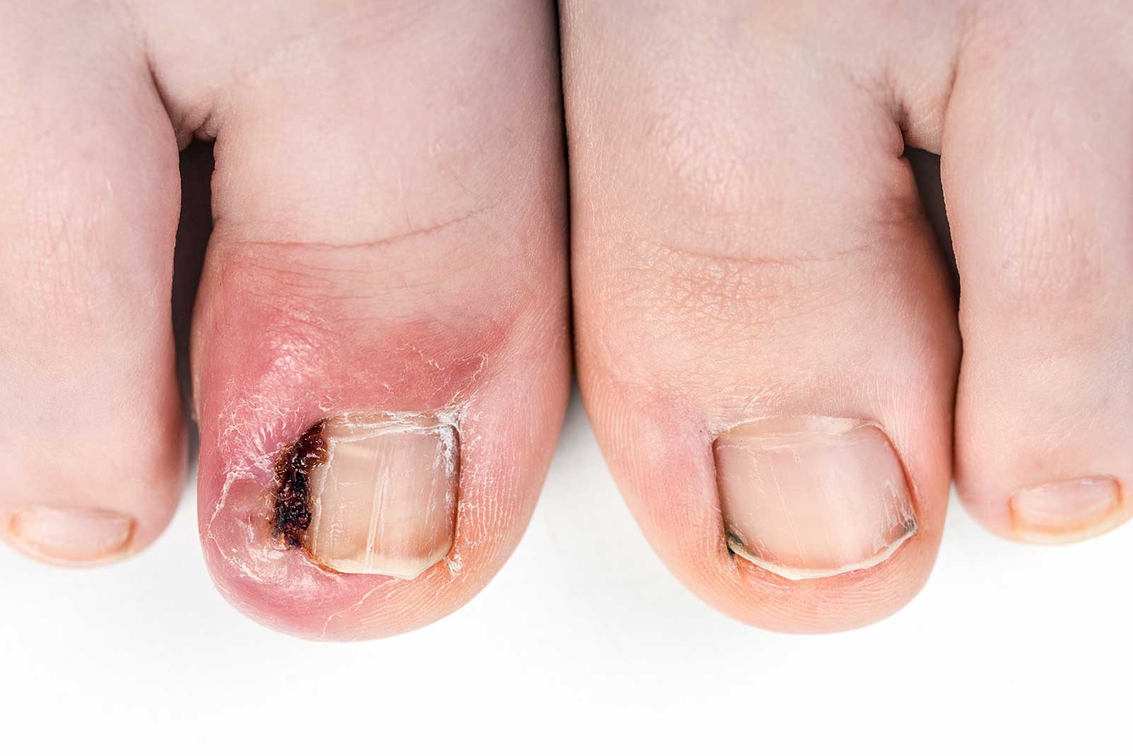 Treatment for ingrowing toenails