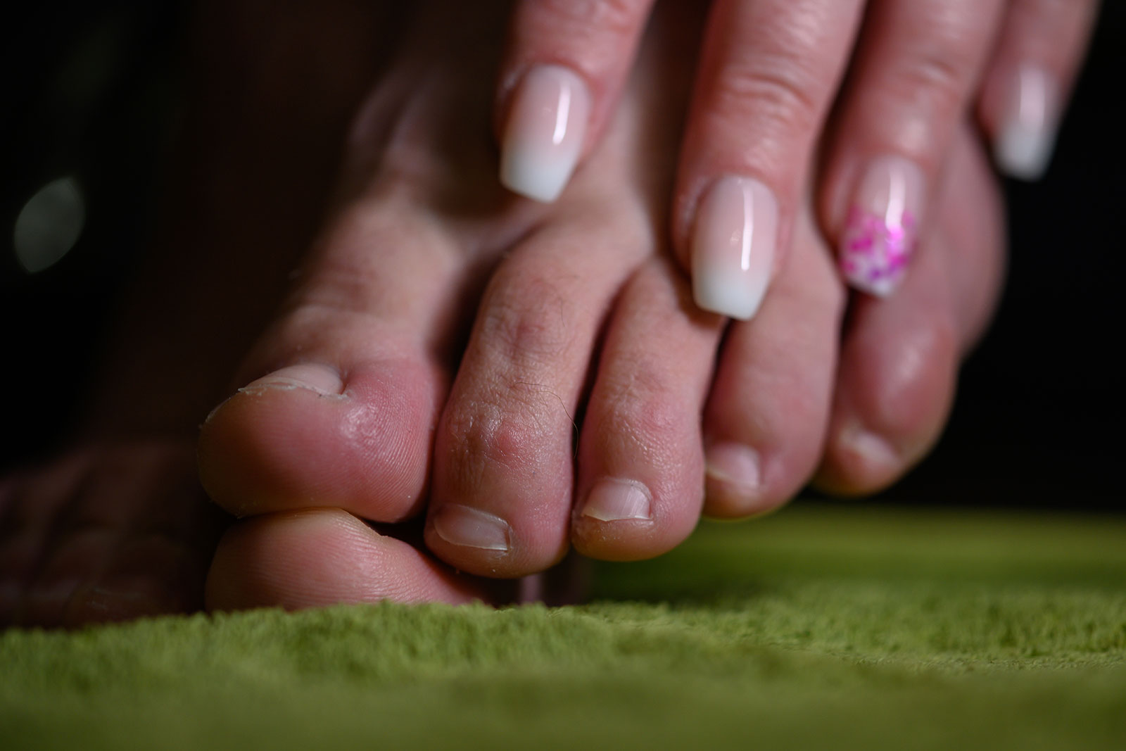 Morton's neuroma treatment Surrey